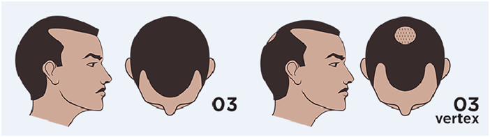 men's hair loss stage 3