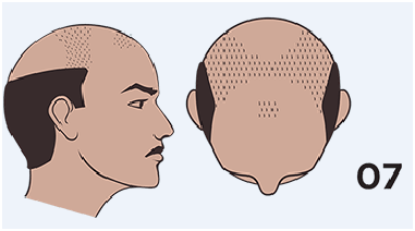 hair loss stage 7