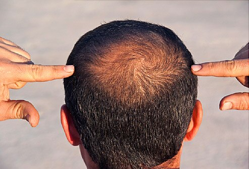 Vertex Baldness