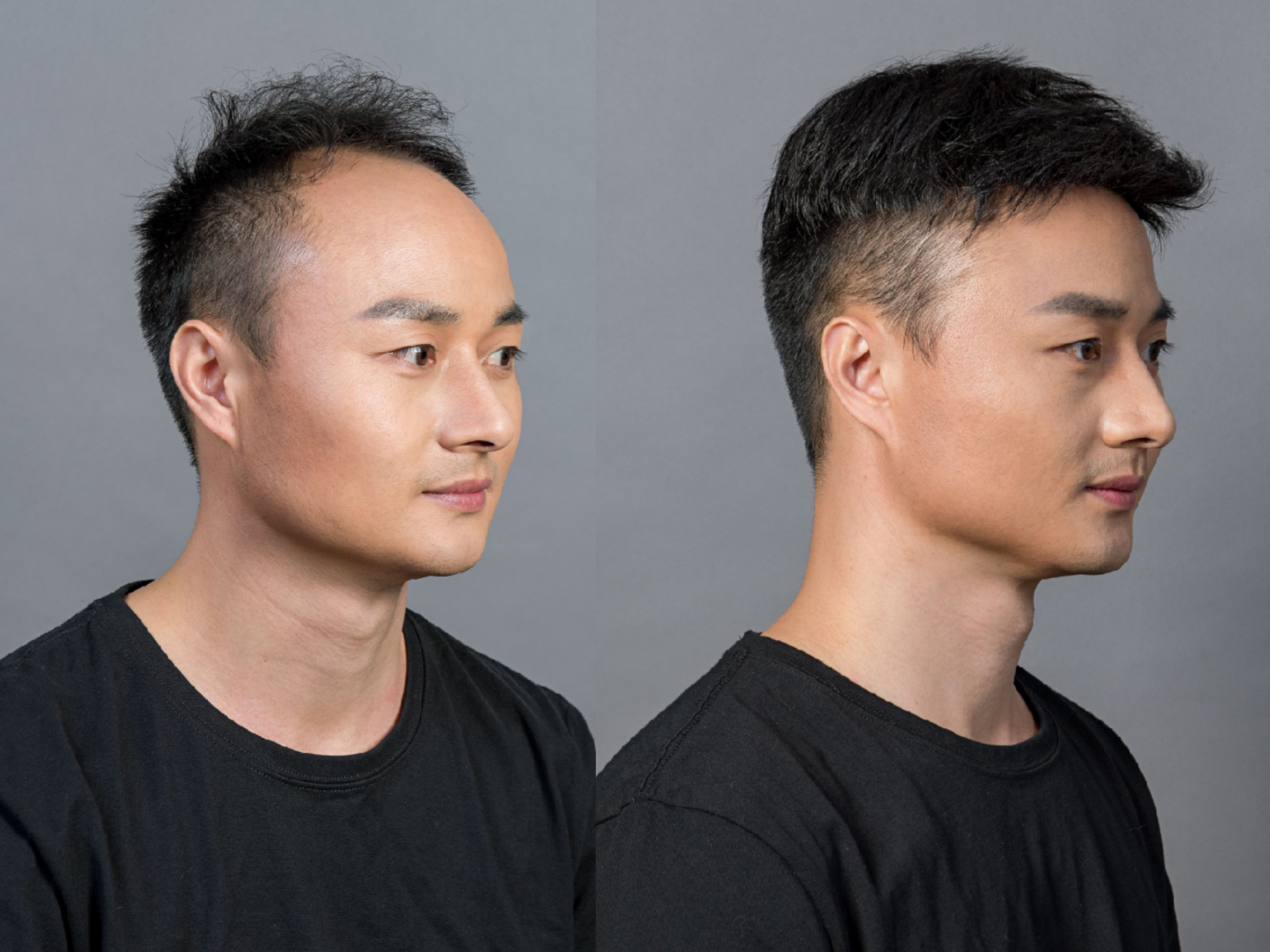 sistema de reemplazo de cabello humano