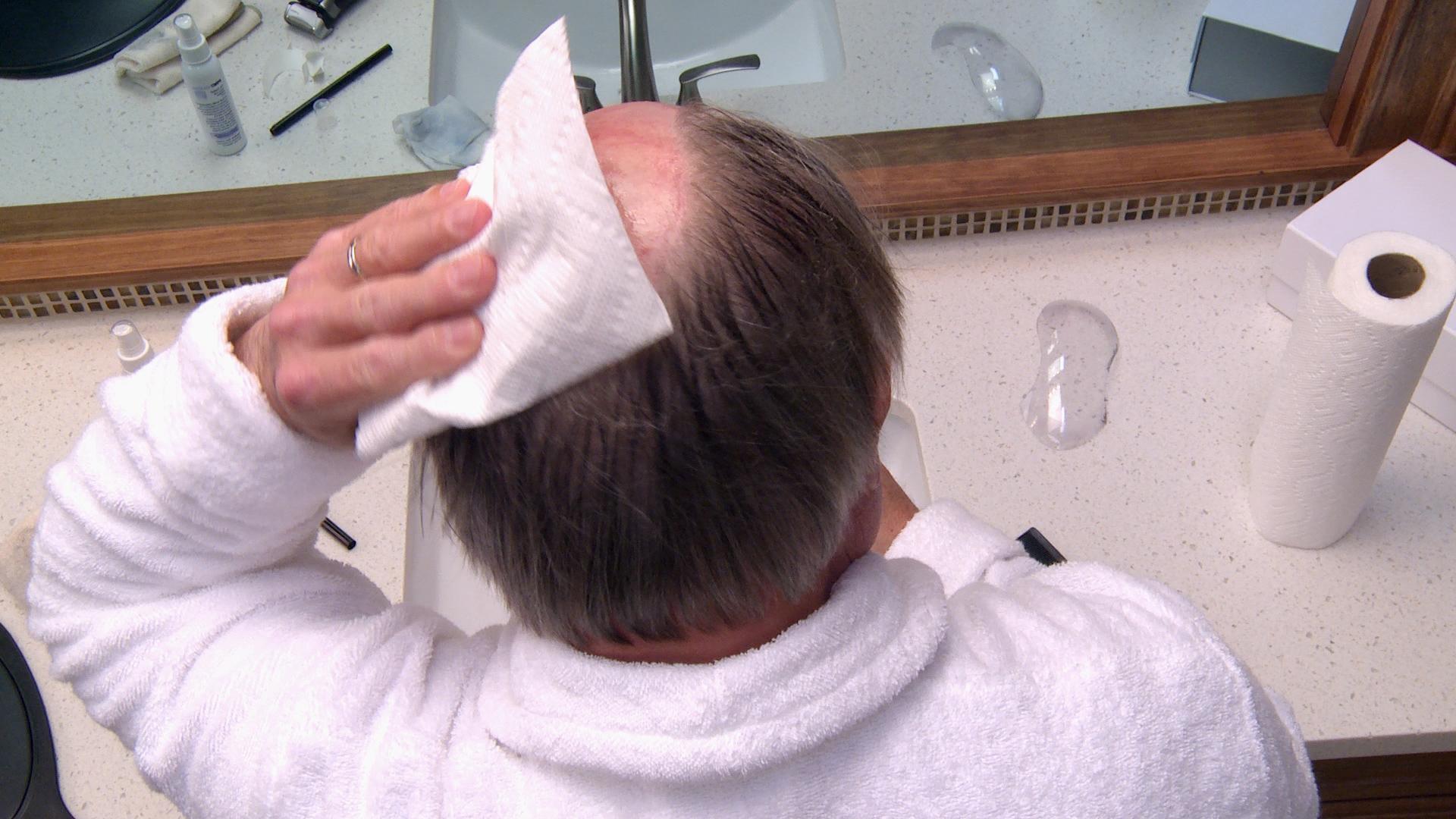 Limpia tu cuero cabelludo